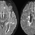 11333-IRM_sclerose_en_plaques
